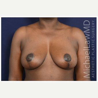 35-44 year old woman treated with Breast Reduction after 3174571