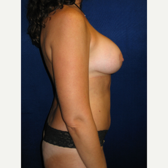 35-44 year old woman treated with Breast Augmentation after 3727197