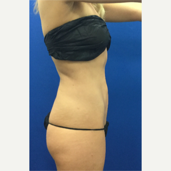 25-34 year old woman treated with Laser Liposuction after 3697099