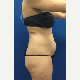 25-34 year old woman treated with Laser Liposuction before 3697099