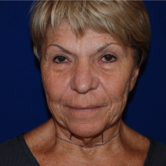 65-74 year old woman treated with Facelift before 3605993
