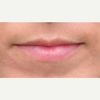 25-34 year old woman treated with Lip Augmentation before 3122276