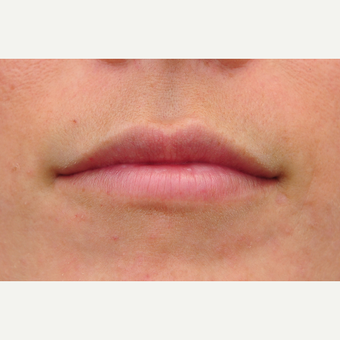 25-34 year old woman treated with Lip Augmentation after 3122276
