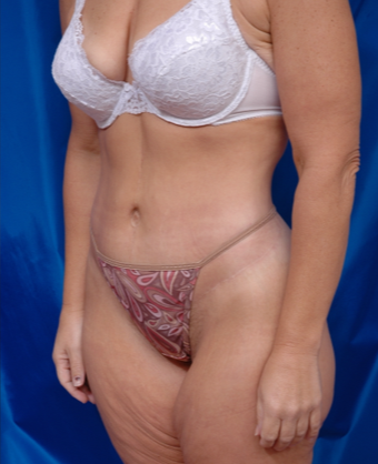 35-44 year old woman treated with Body Lift , arm lift and liposuction