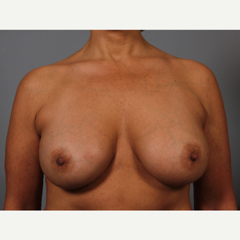48 year old had breast lift after 3419016