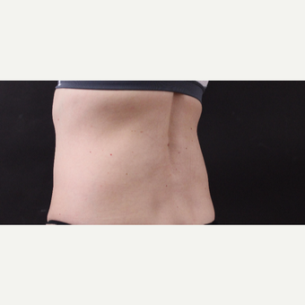 49 year old woman treated with CoolSculpting before 3630246