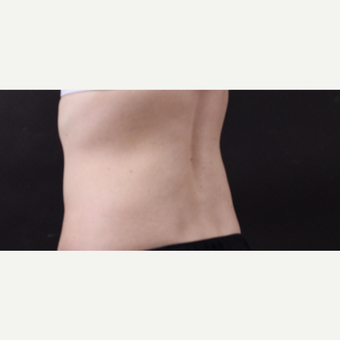 49 year old woman treated with CoolSculpting after 3630246