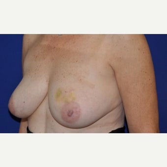 60 Year Old Circumvertical Mastectomy Patient before 2222338