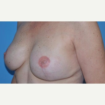60 Year Old Circumvertical Mastectomy Patient after 2222338