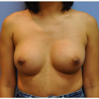 18-24 year old woman treated with Breast Augmentation after 3105215