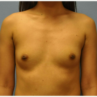 18-24 year old woman treated with Breast Augmentation before 3105215
