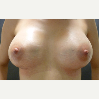 25-34 year old woman treated with Breast Augmentation after 3796035