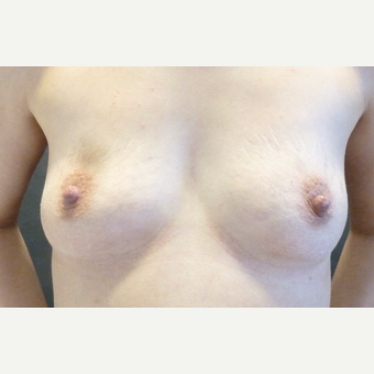 25-34 year old woman treated with Breast Augmentation before 3796035