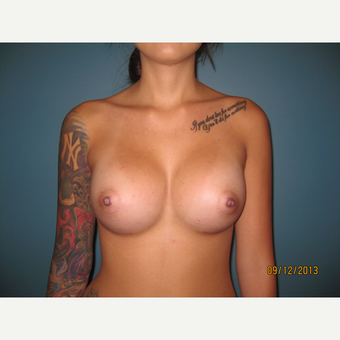 18-24 year old woman treated with Breast Implants after 3736674