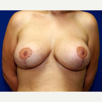 25-34 year old woman treated with Breast Lift after 3037720