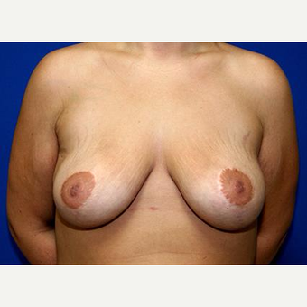 25-34 year old woman treated with Breast Lift before 3037720