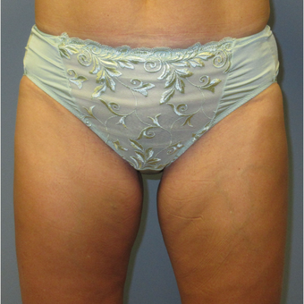 45-54 year old woman treated with CoolSculpting after 3764019
