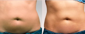 18-24 year old woman treated with CoolSculpting