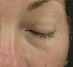 Tear Trough after injection with Restylane before 52897