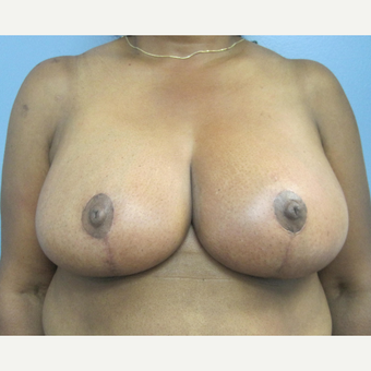 55-64 year old woman treated with Breast Reduction after 2853391