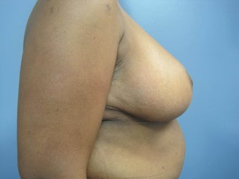 55-64 year old woman treated with Breast Reduction 2853391