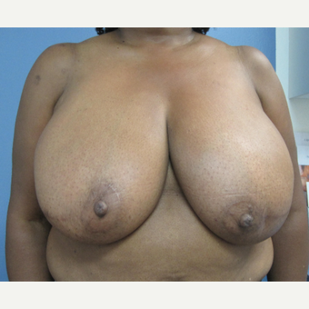 55-64 year old woman treated with Breast Reduction before 2853391