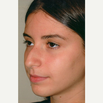 17 or under year old woman treated with Rhinoplasty before 3406377