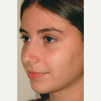 17 or under year old woman treated with Rhinoplasty after 3406377
