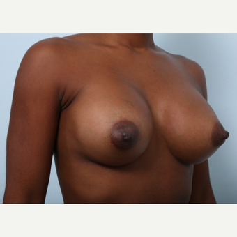 Breast Augmentation after 3345147