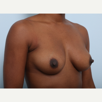 Breast Augmentation before 3345147