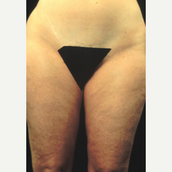45-54 year old woman treated with Liposuction before 2951172