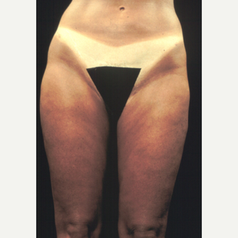 45-54 year old woman treated with Liposuction after 2951172