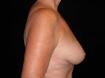 60 year old lady treated for breast atrophy with fat transfer after 631682
