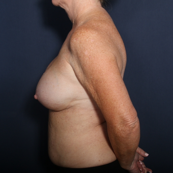 55-64 year old woman treated with Breast Implant Revision (view 2 of 2) after 3169418