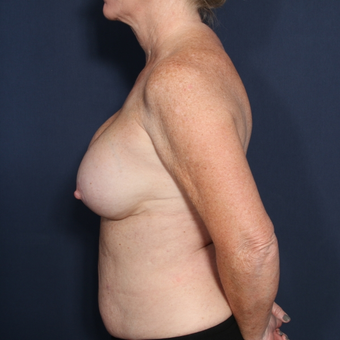 55-64 year old woman treated with Breast Implant Revision (view 2 of 2) before 3169418