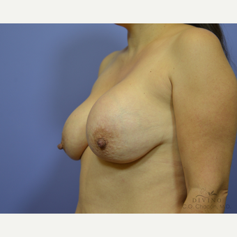 35-44 year old woman treated with Breast Implant Revision before 3415865