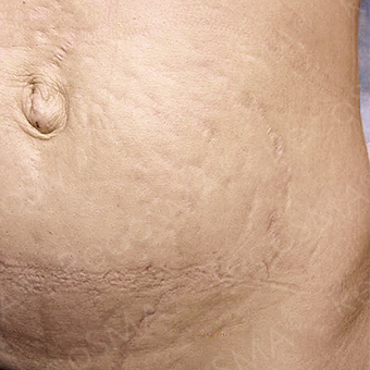 37 year old woman, stretch mark treatment with RecoSMA