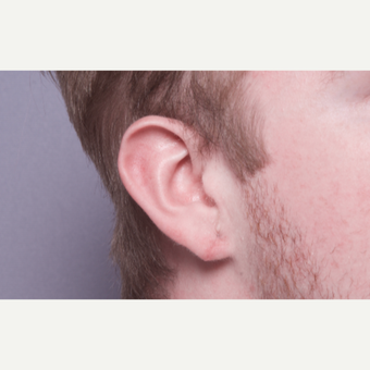 18-24 year old man treated with Ear Lobe Surgery after 2984288