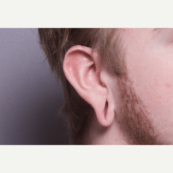 18-24 year old man treated with Ear Lobe Surgery before 2984288