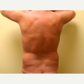 45-54 year old man treated with Vaser Liposuction before 2083554