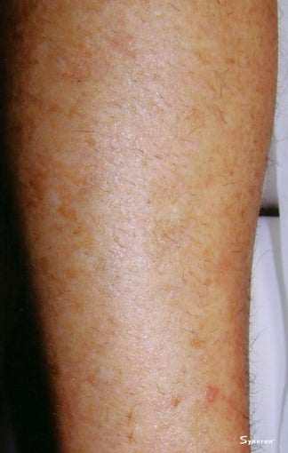 Laser Hair Removal  after 1103421