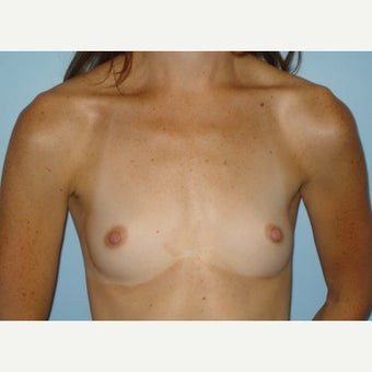 25-34 year old woman treated with Breast Augmentation before 1570977