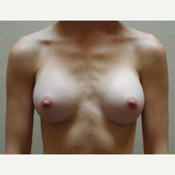 25-34 year old woman treated with Breast Augmentation after 1570977