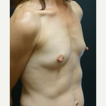 35-44 year old woman treated with Breast Implants before 3460348