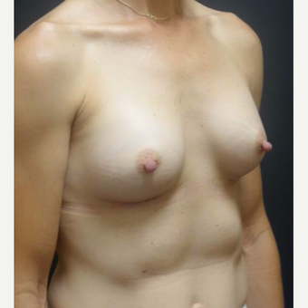 35-44 year old woman treated with Breast Implants after 3460348