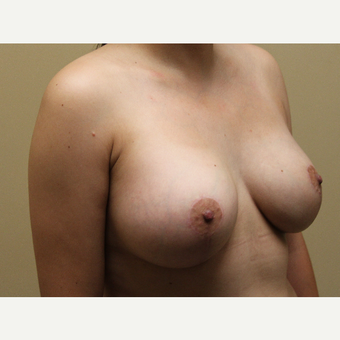 25-34 year old woman treated with Breast Lift with Implants after 3690933