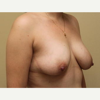 25-34 year old woman treated with Breast Lift with Implants before 3690933