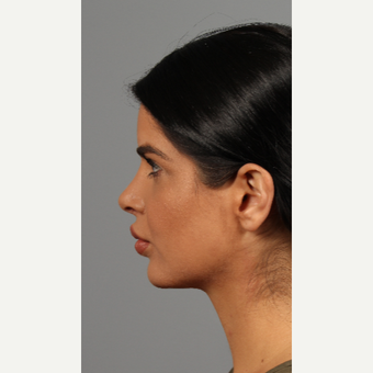 25-34 year old woman treated with Rhinoplasty after 3286598