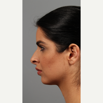 25-34 year old woman treated with Rhinoplasty before 3286598