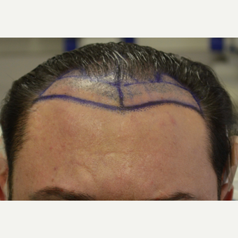 35-44 year old man treated with FUE Hair Transplant before 3667216